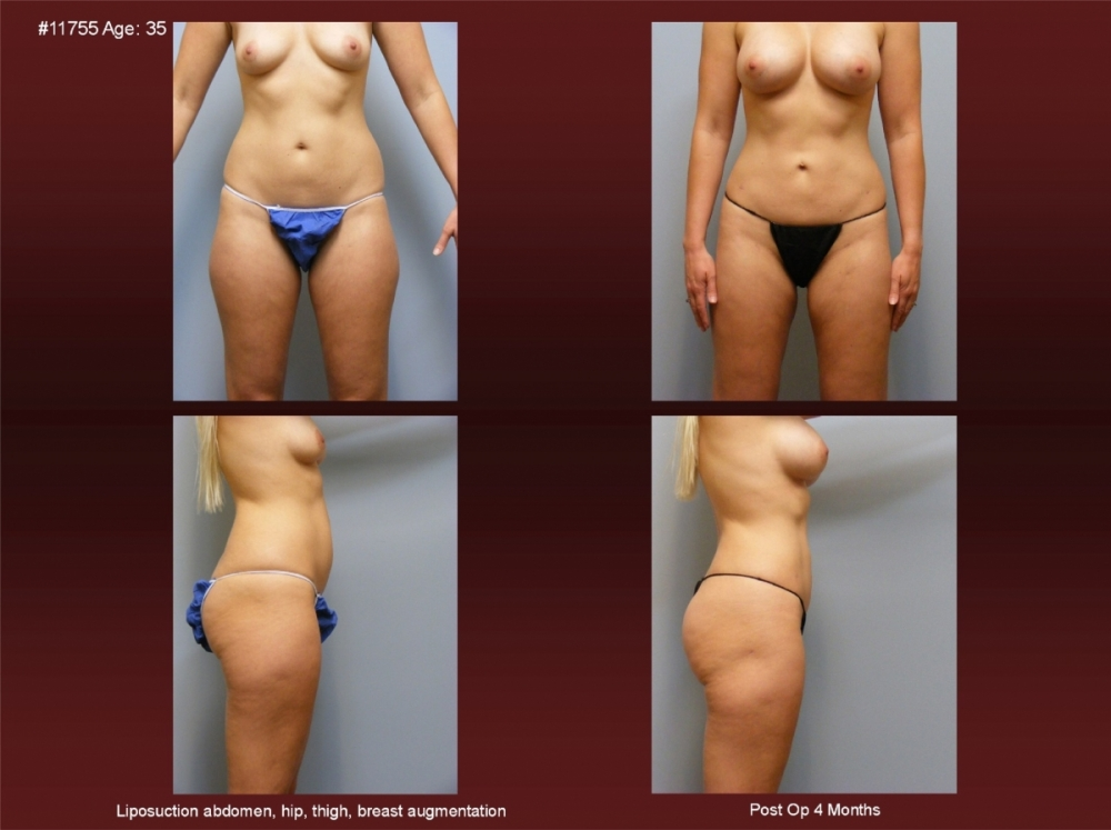 Liposuction at Georgetown Plastic Surgery